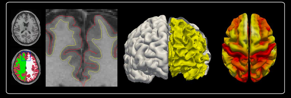 Reconstruction of cortical surface