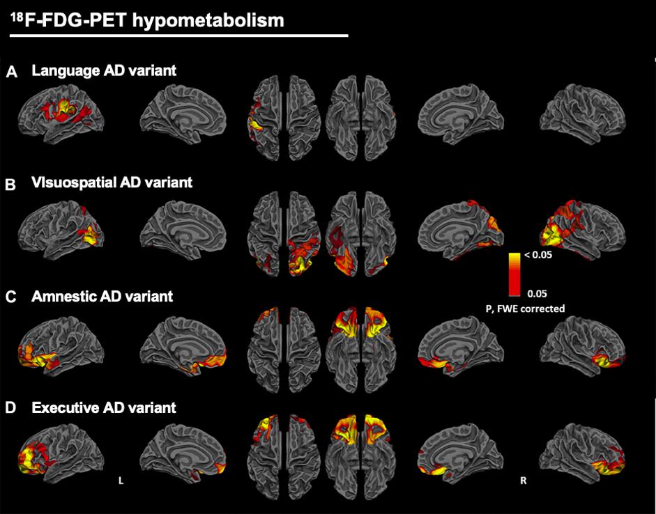 Hypometabolism patterns